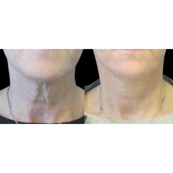 Photos of the neck - before and after correction