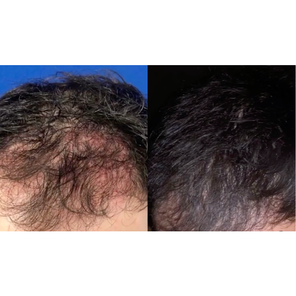 Photos of the hair on the man's head - before and after treatment