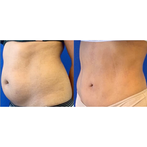 Pictures of the abdomen - before and after treatment