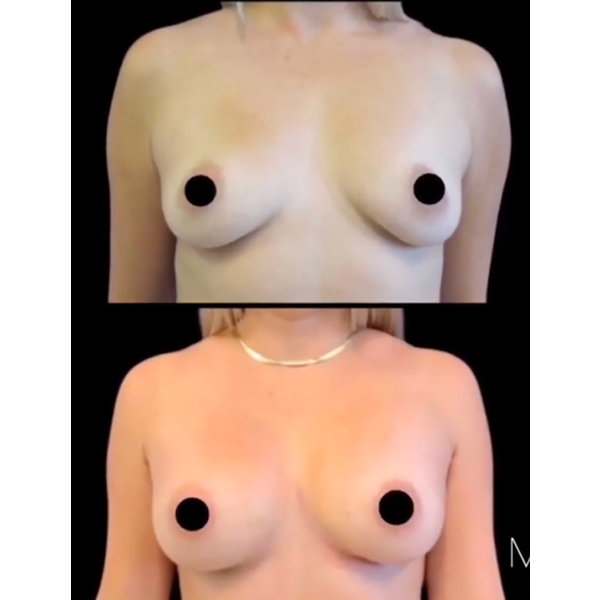 Breast photos - before and after correction