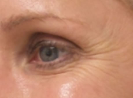 female patient before botox for crow's feet treatment
