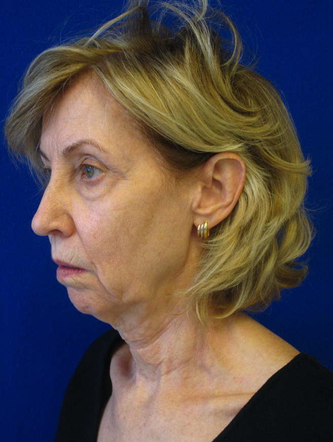 Female Patient Before Facelift - Left Side