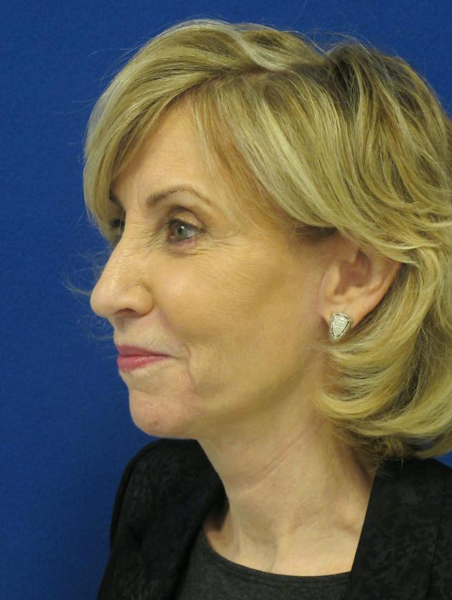 Female Patient After Facelift - Left Side