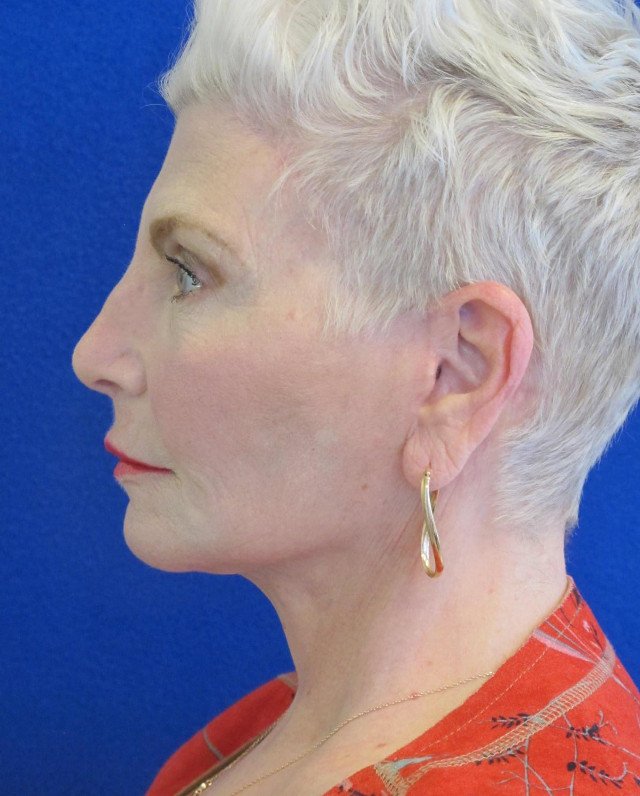 Female Patient After Facelift - Left Side
