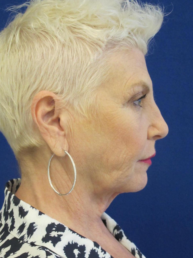 Female Patient Before Facelift - Right Side