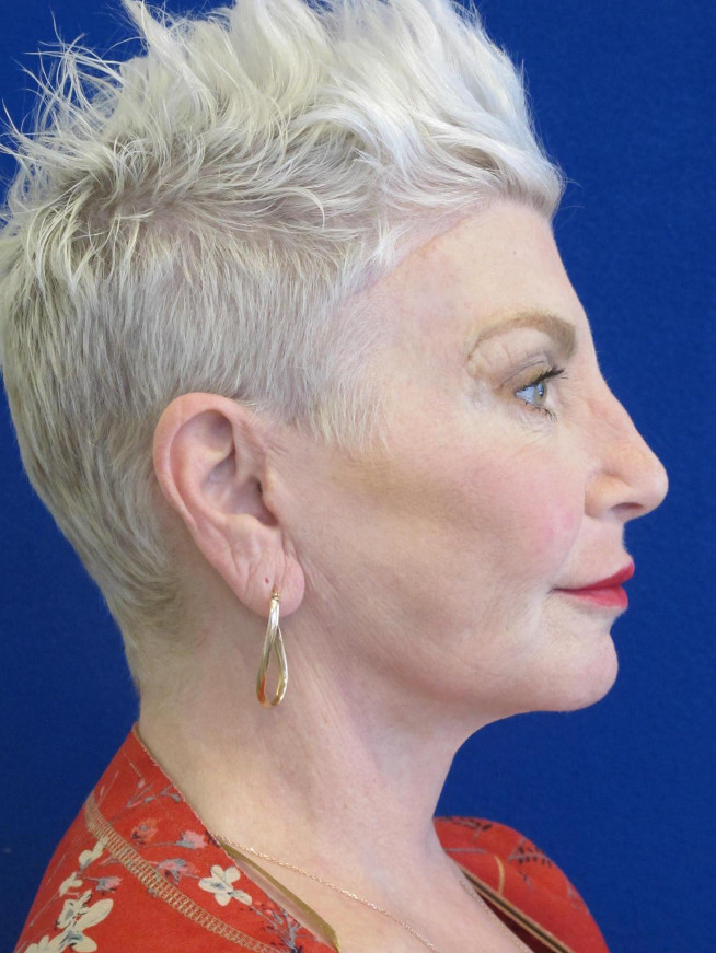 Female Patient After Facelift - Right Side