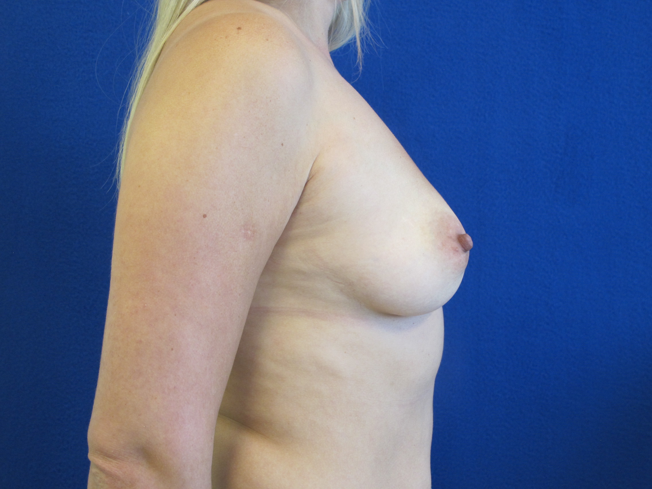 patient before breast augmentation