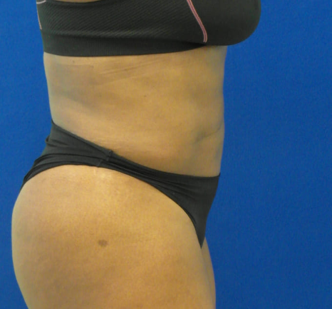 Female Patient After Liposuction - Right Side