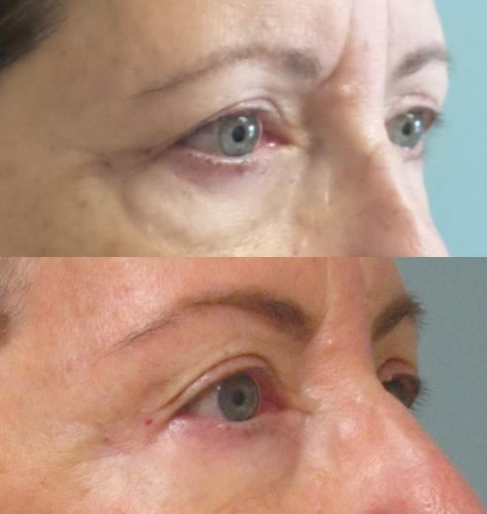 female patient facelift - eye area