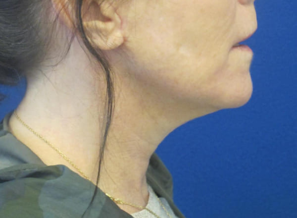 Necklift before and after photo