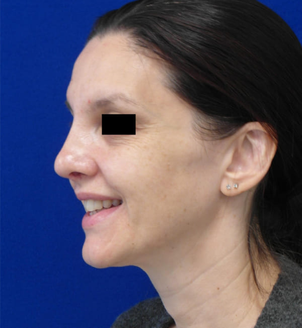 Rhinoplasty and septoplasty before and after photo