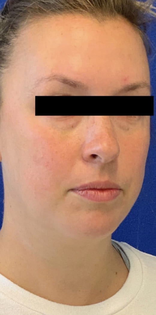 Female Patient Before Blepharoplasty - Right Side