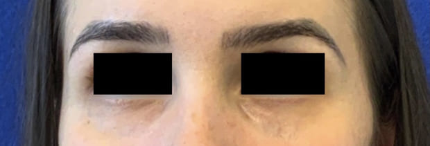 Female Patient Before Blepharoplasty - Front