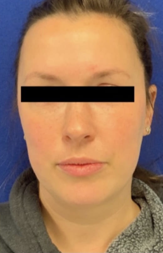 Female Patient After Blepharoplasty - Front