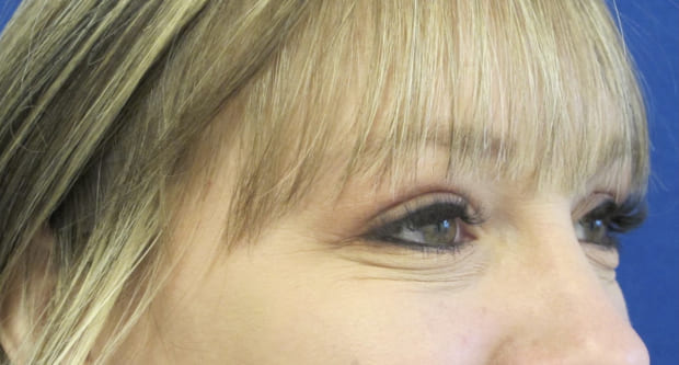 Female Patient After Blepharoplasty - Right Side