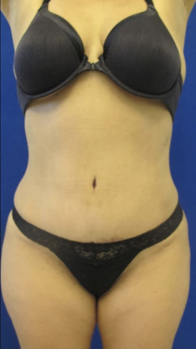 Female Patient After Tummy Tuck/Abdominoplasty - Front