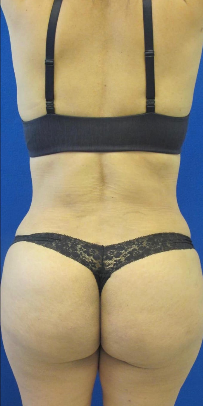 Female Patient After Tummy Tuck/Abdominoplasty - Back