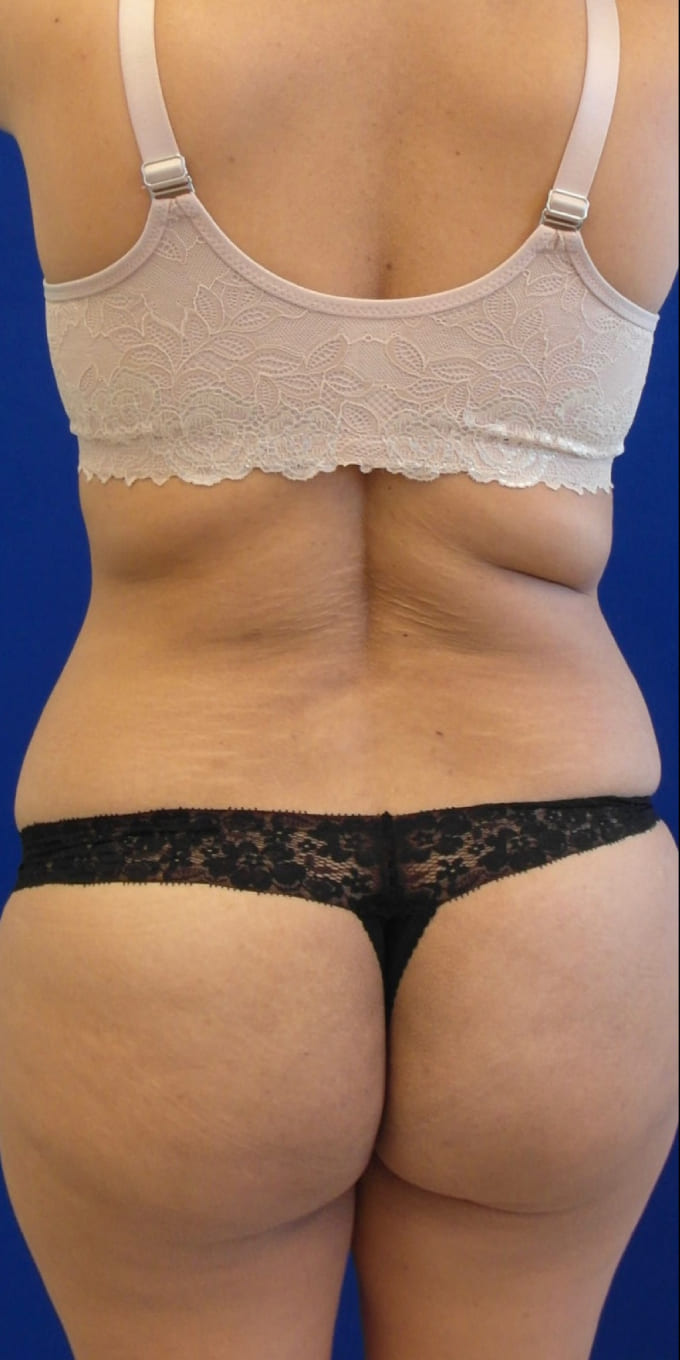 Female Patient Before Tummy Tuck/Abdominoplasty - Back