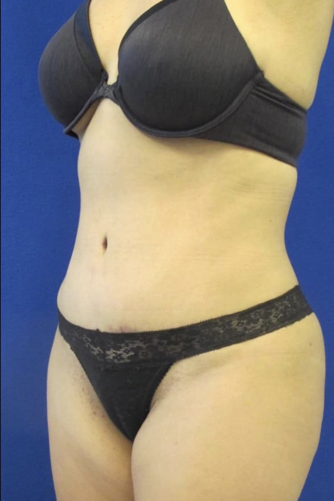 Female Patient After Tummy Tuck/Abdominoplasty - Left Side