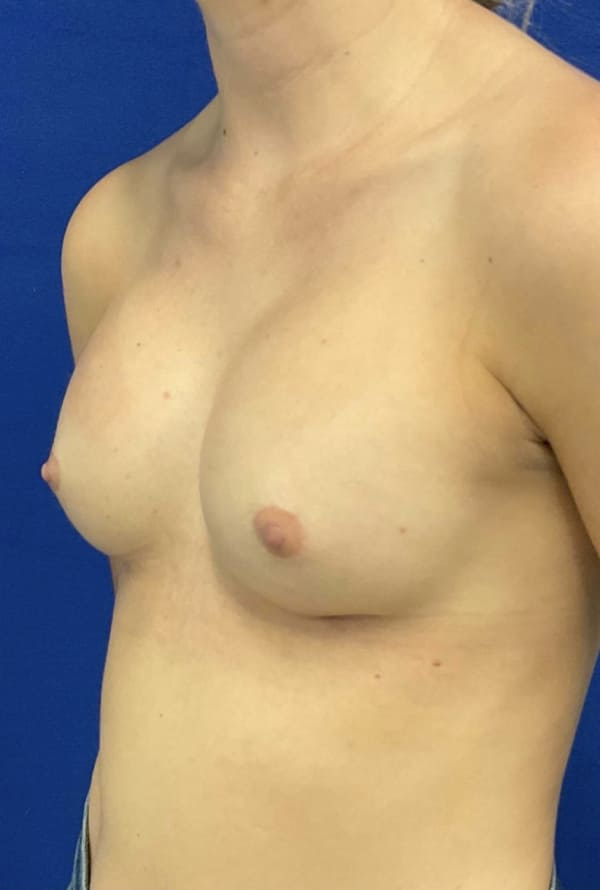 Female Patient After Breast Augmentation - Left Side