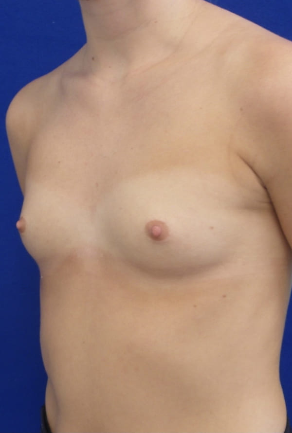 Female Patient Before Breast Augmentation - Left Side