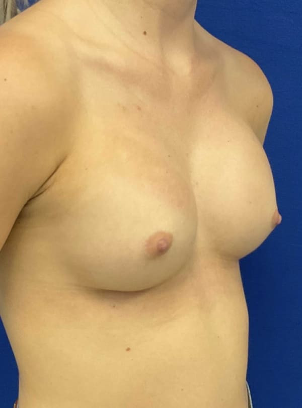 Female Patient After Breast Augmentation - Right Side
