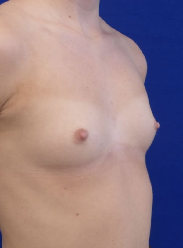 Female Patient Before Breast Augmentation - Right Side