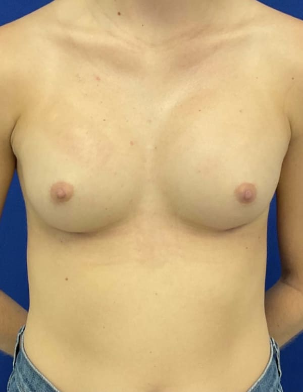 Female Patient After Breast Augmentation - Front