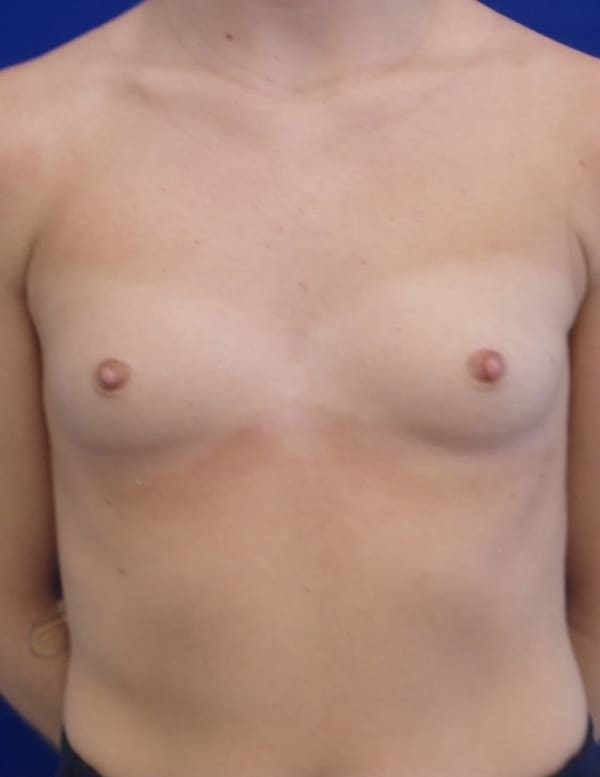 Female Patient Before Breast Augmentation - Front