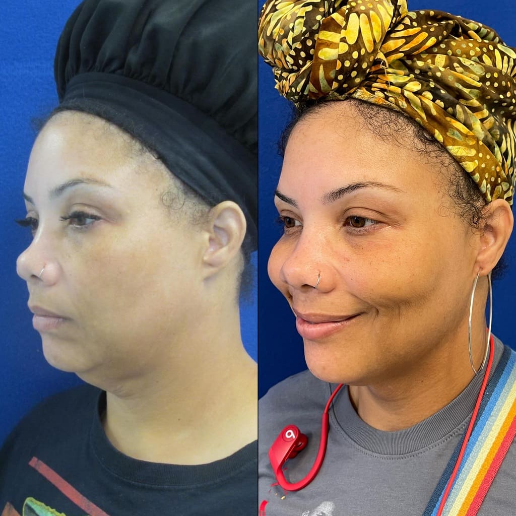 Female Patient Before & After Neck Liposuction