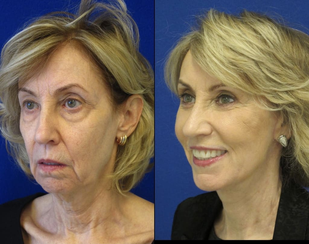 Female Patient Before & After Blepharoplasty