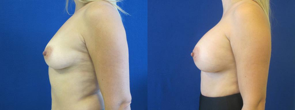 Female Patient Before & After Breast Augmentation
