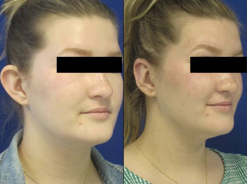 Female Patient Before & After Otoplasty - Earwell