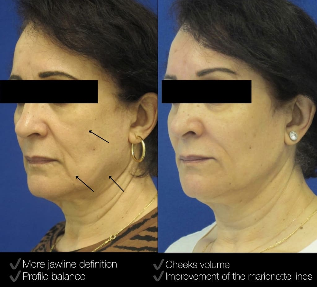 Female Patient Before & After Filler