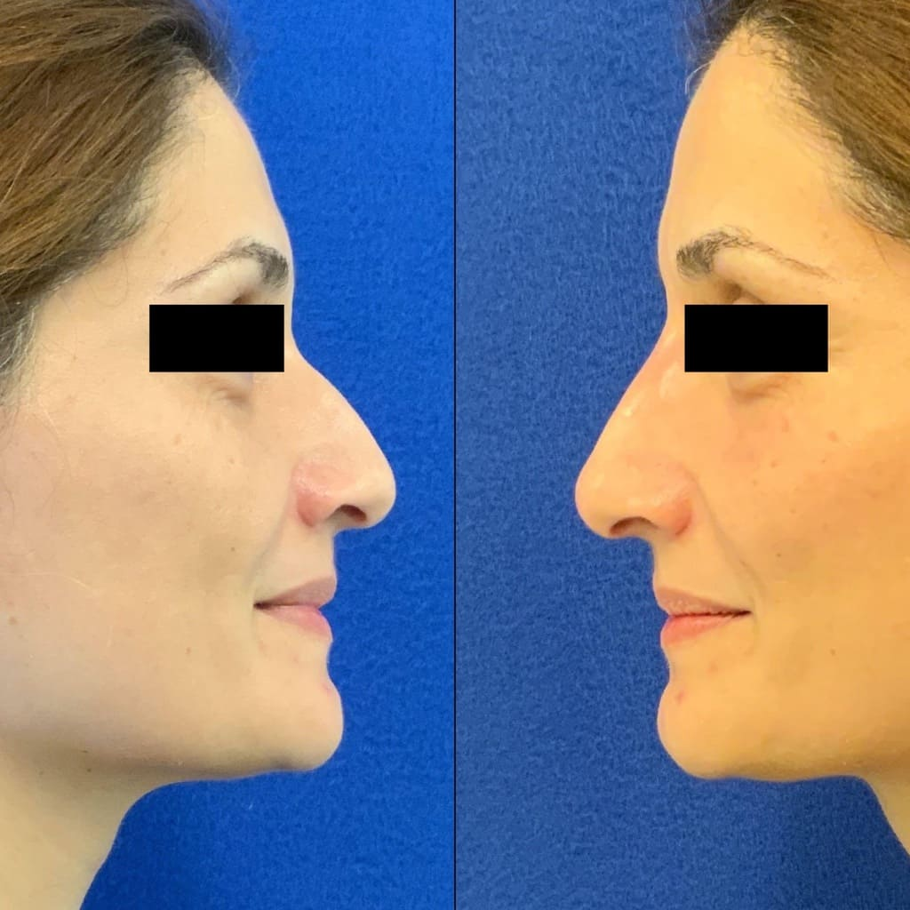 Female Patient Before & After Non Surgical Rhinoplasty