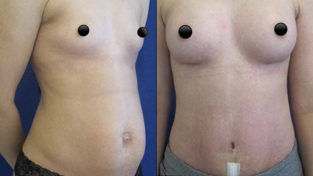 Female Patient Before & After Tummy Tuck