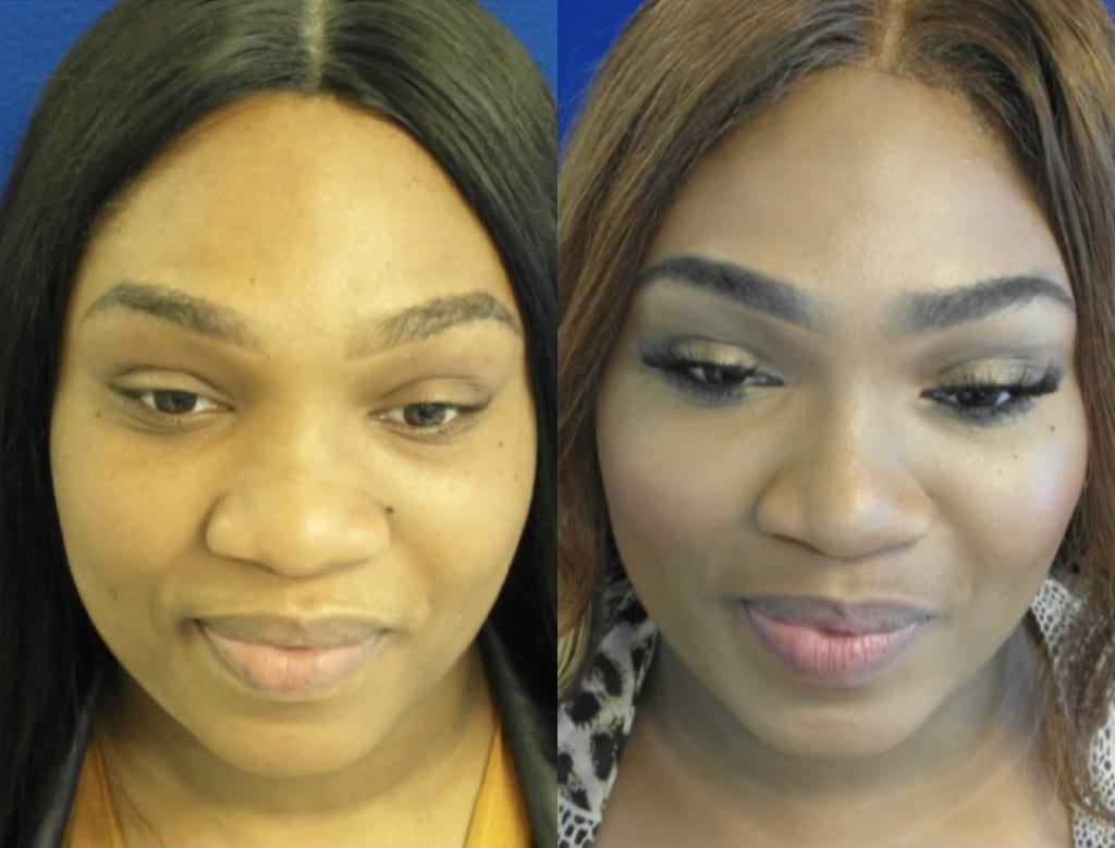 Female Patient Before & After Nostril Reduction
