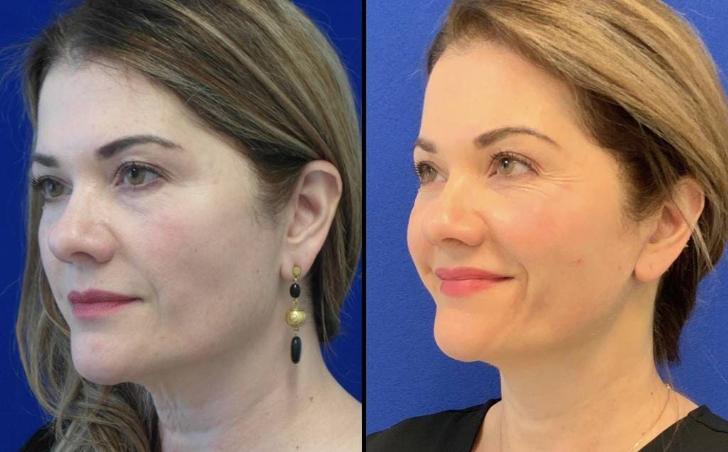 Female Patient Before & After Mini FaceLift