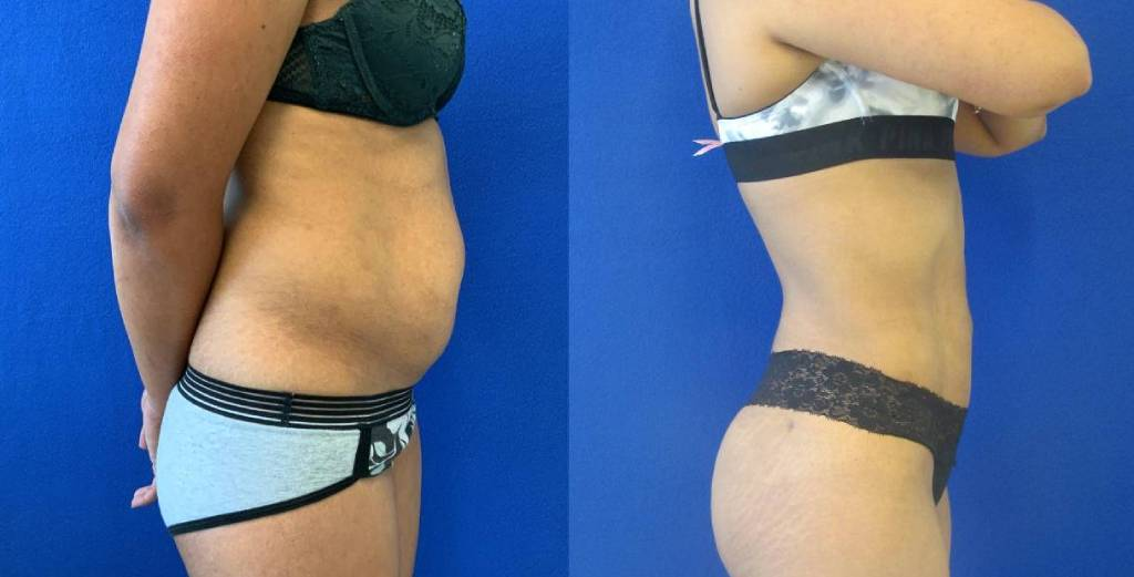 Female Patient Before & After Liposuction